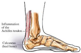 vancouver-acupuncture-for-achilles-tendonitis