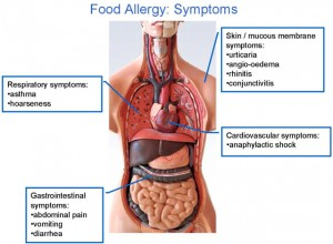 vancouver food allergy test - symptoms